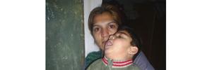 Дете со детска парализа спие на земја