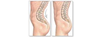 Зголемен е бројот на деца со деформитет на рбетот