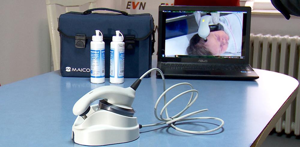 Кумановската болница од ЕВН доби апарат за скрининг на слух на новороденчиња