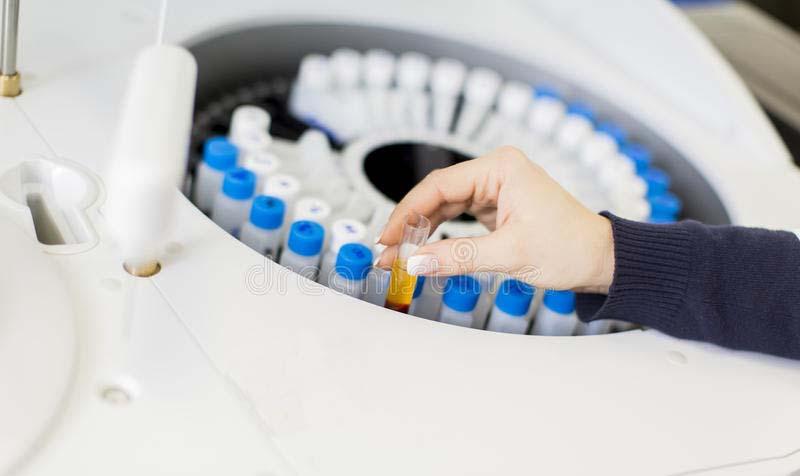 Лeкарски совет: Kако правилно да се подготвите за лабораториски анализи